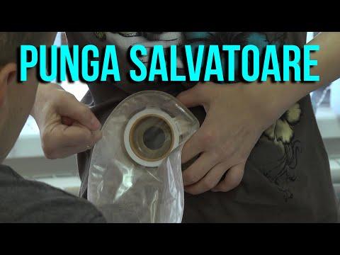 Pur și Simplu: Punga Salvatoare / Viața Purtătorilor De Stomă Din Moldova