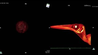 Studying Anatomy: CT scanning thumbnail