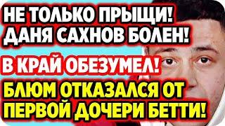 Не только прыщи Даня Сахнов болен ДОМ 2 НОВОСТИ 24 июля 2020