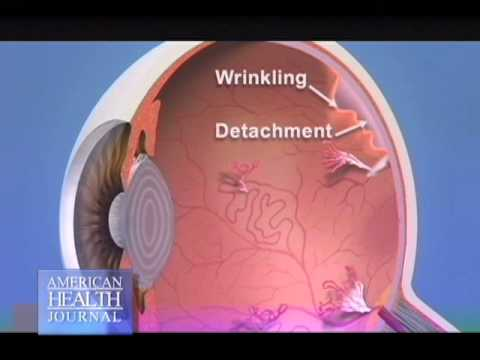 How Does Diabetes Affect the Eyes - David Boyer MD