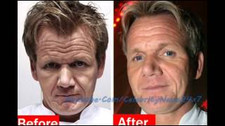 Gordon Ramsay Plastic Surgery Before and After