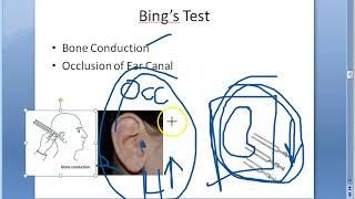 ENT 039 d Bings Test Tuning fork EAR Hearing