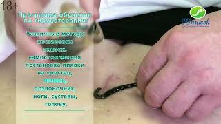 """Обучение гирудотерапии. Учебный центр ООО """"Юнитек"""". 18+"""