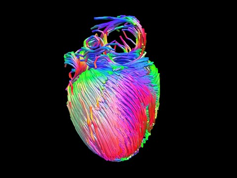 MRI diffusion tensor imaging of the heart