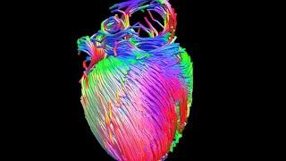 MRI diffusion tensor imaging of the heart