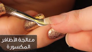 بالفيديو.. طريقة جديدة لمعالجة الأظافر المكسورة