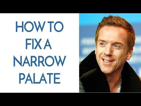 How To Fix A Narrow Palate