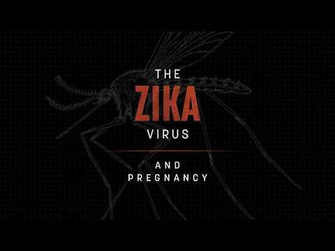 The Zika Virus and Pregnancy (2017) - English