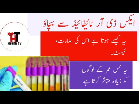 Signs and Symptoms of XDR Typhoid – Important Tests of XDR Typhoid – Treatment of XDR Typhoid