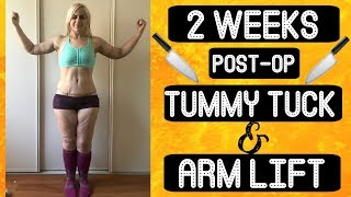 Post-Op Plastic Surgery Week 2!    Tummy Tuck + Arm Lift    SWELL HELL!