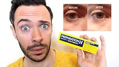 HOW TO GET RID of UNDER EYE BAGS & DARK CIRCLES INSTANTLY w/ PREPARATION H | Does It Really Work?