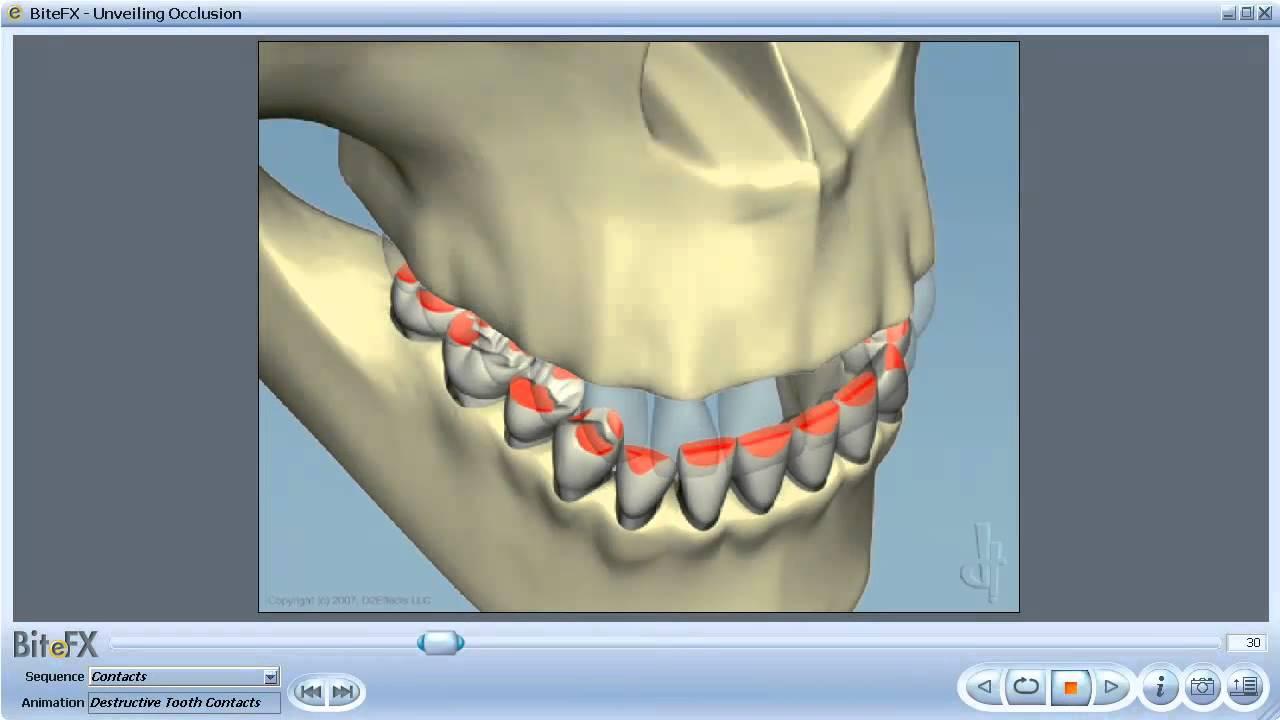 Dental Occlusion - YouTube