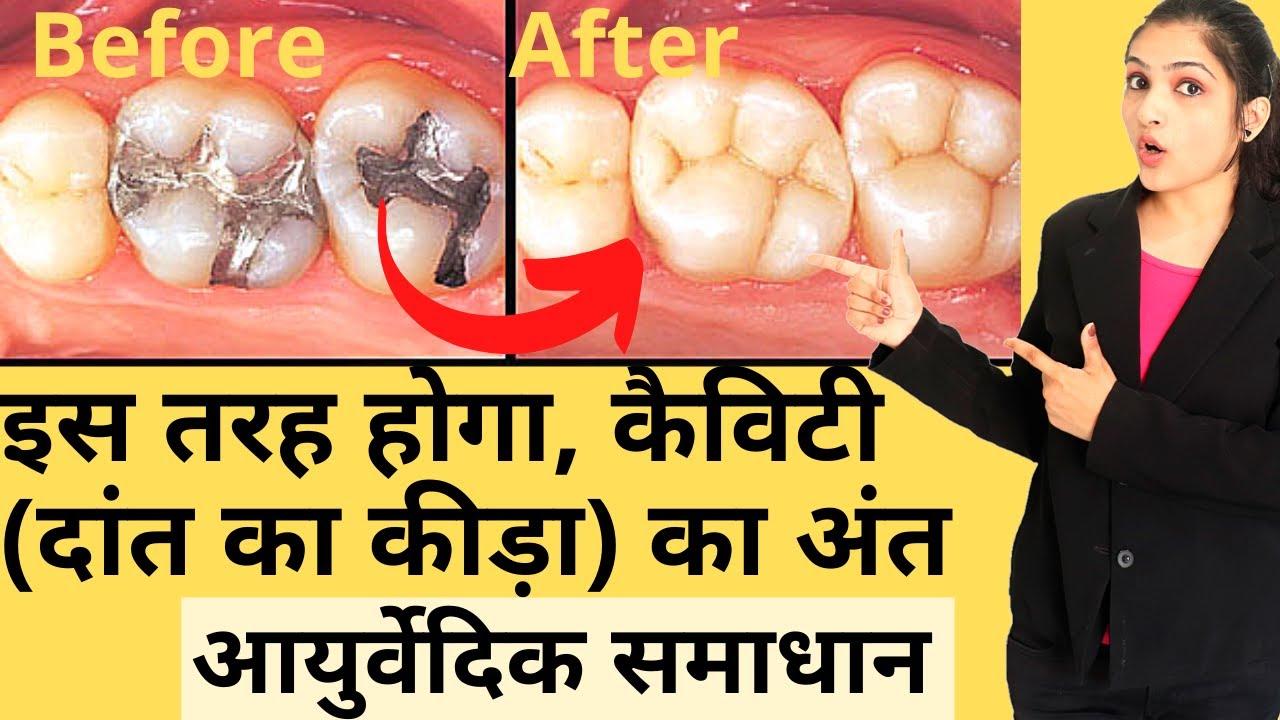 how to cure dental cavity at home in hindi | danto ke kide kaise saaf kare| दांतों की सफाई के नुस्खे