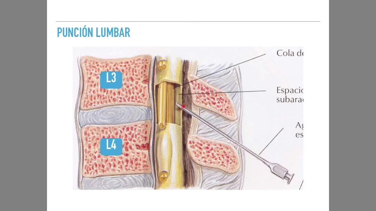Resultado de imagen de puncion lumbar