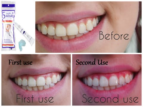 Does This Work 5 Minute Teeth Whitening Dollar Tree Products