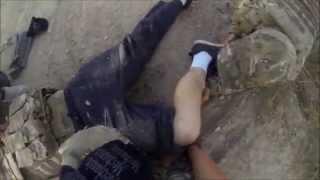 Airsoft Match - Leg Break (Strong Language)