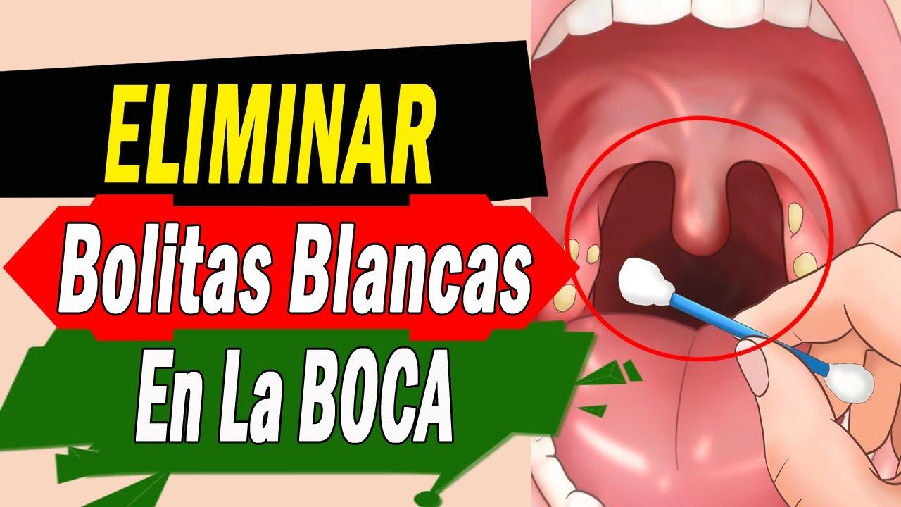 Remedio Casero Para Eliminar Las Bolitas Blancas Que Aparecen En La Amígdala Garganta Youtube