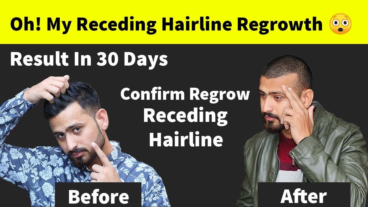 Oh! My Receding Hairline Regrowth Naturally Very Fast | How To Stop Receding Hairline Instant