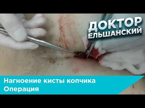 Нагноение кисты копчика операция