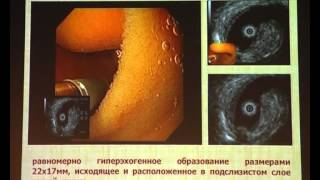 23 Селезнев Д Е    Уточняющая диагностика и удаление липомы тощей кишки через энтероскоп(Описание., 2014-05-25T11:16:24.000Z)