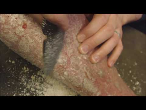 Coconut Bunches of Flakes [Psoriasis, Oil, Scrape, Pick, Peel]