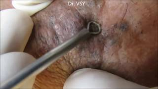 Repeat youtube video Forest Of Blackheads