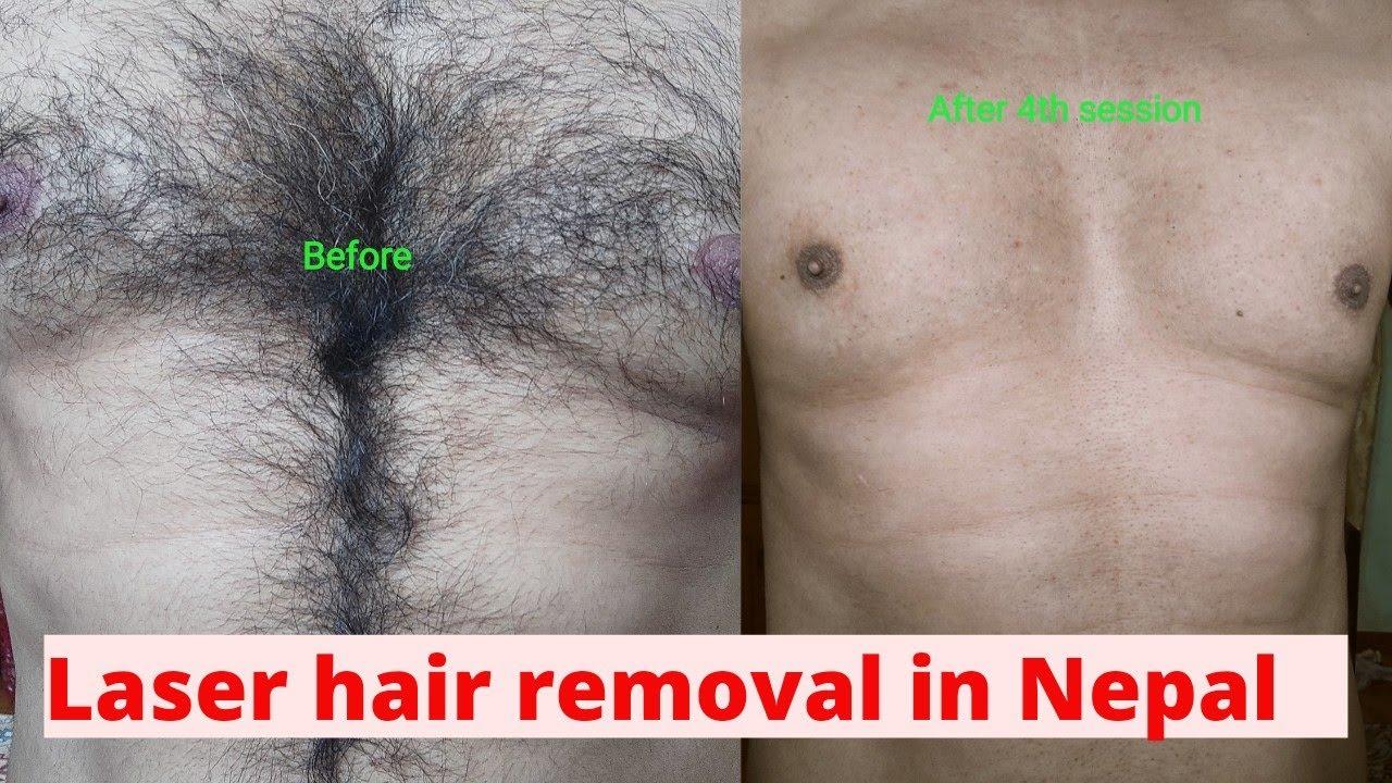 Laser Hair Removal In Nepal By Dermatologist Dr Kamal Raj Dhital
