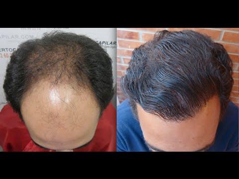 5736 grafts. Hair Transplant by FUE Technique. Advanced Alopecia. Injertocapilar.com. 637/2011