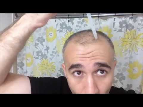 CG210 Hair lotion - How to use - Men from YouTube · Duration:  54 seconds
