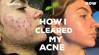 HOW I CLEARED MY CYSTIC ACNE *NATURALLY* + TIPS
