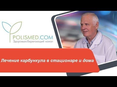 Лечение карбункула в стационаре и дома. Операция и прогноз при карбункуле