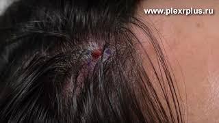 Удаление головной кисты сальной железы с использованием аппарата Plexr Plus