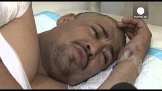 Йемен: число жертв растет, Красный Крест бьет тревогу