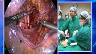 Uterine artery dissection before total laparoscopic hysterectomy
