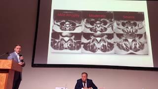 Доклад Епифанова на конгрессе «Управляй болью». Ле...