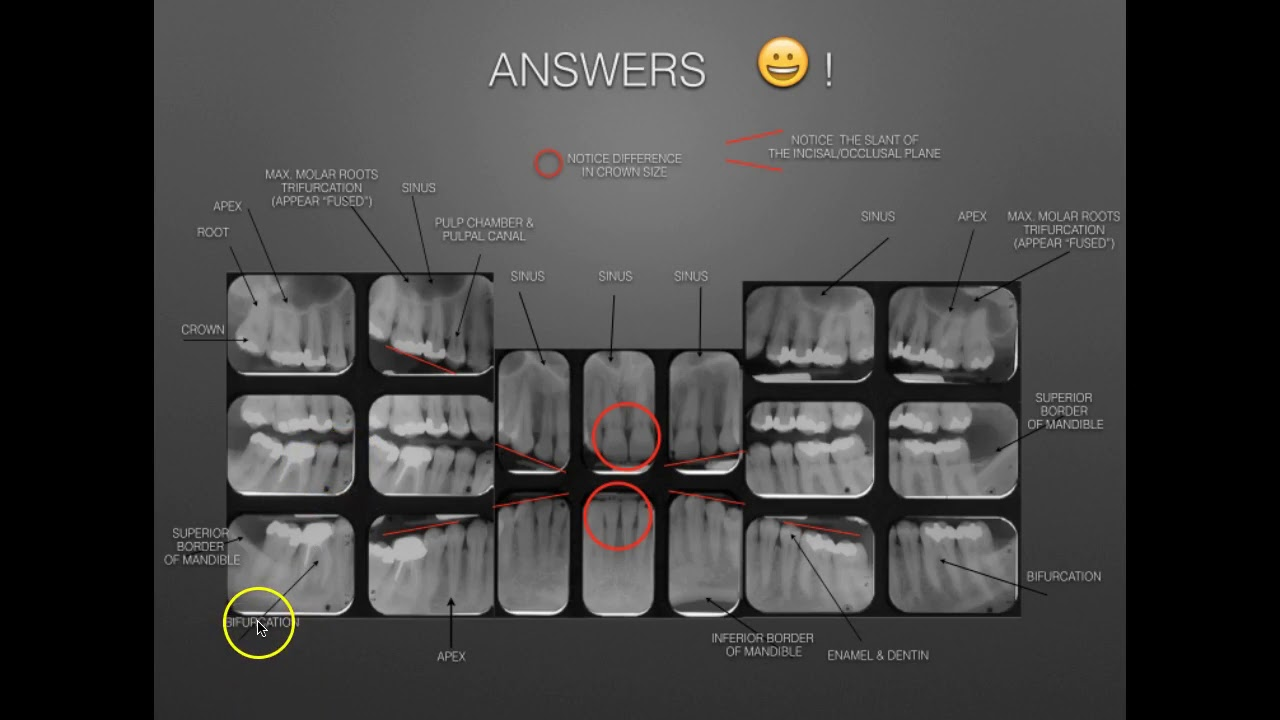 The Full Mouth X-ray Survey Identification & Film Mounting