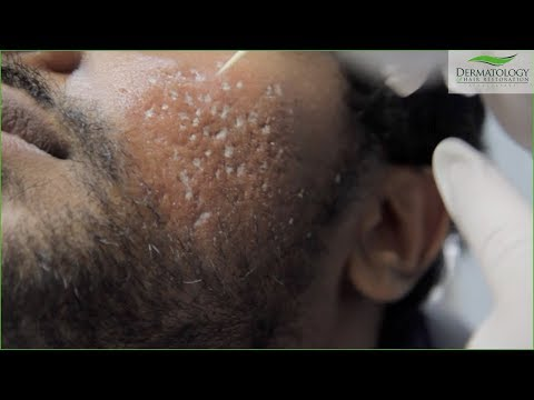 TCA Cross FULL TREATMENT For Acne Scars - Los Angeles
