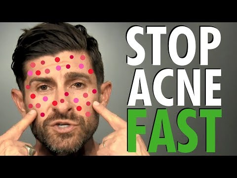 How To Get Rid Of Acne Fast Best Acne Treatment For Clear Skin Men S Skin Care Routine Youtube