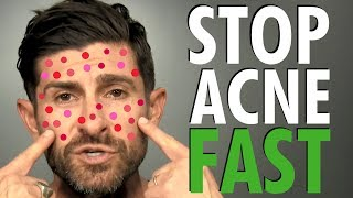 How To Get Rid Of Acne Fast | BEST Acne Treatment For Clear Skin (Men