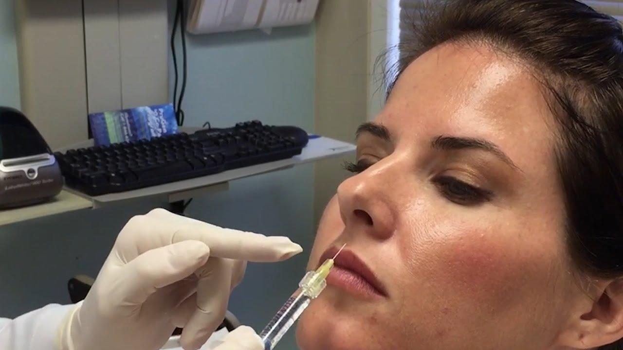 Live Demo - Instantly Fuller Lips with Restylane Silk - Dr  Lenore  Sikorski, Natural Image OC