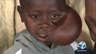 Retired NBA star Dikembe Mutombo is helping an 8-year-old boy from Congo with a large tumor on his face get the life-altering and life-saving surgery he needs ...
