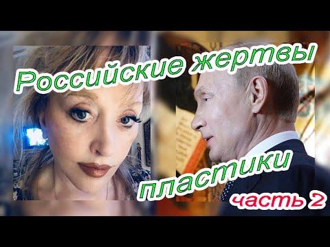 Российские жертвы пластической хирургии - часть 2