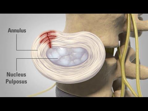 Patient Animation - Lumbar Degenerative Disc Disease