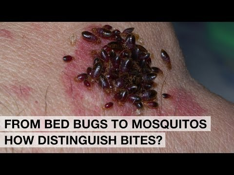 Bed Bugs In Hostels, Mosquitos, Ticks, Fleas, Spiders And Scorpions: Bites And Protection.