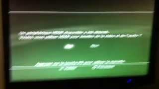 Ma télé ne détecte plus mon HDMI ! Que faire ? SVP