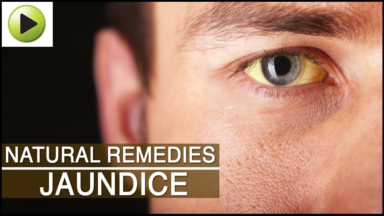 Jaundice Natural Ayurvedic Home Remedies YouTube - Best home remedies for jaundice its causes and symptoms