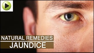 Jaundice - Natural Ayurvedic Home Remedies