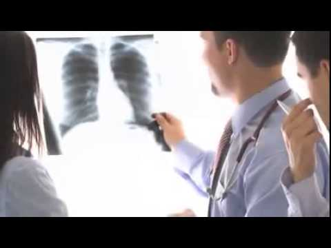 Mesothelioma Staging