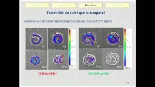 Association Escherichia coli pathogènes et cancer du côlon