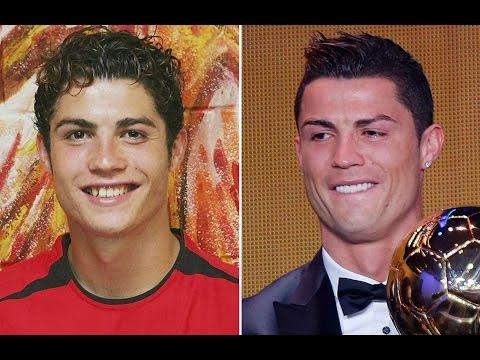 Звездные улыбки тогда и сейчас. Кто исправил кривые зубы?